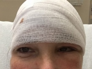 Day after brain surgery - Fran Cannon Slayton